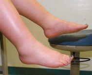 Ποιες είναι οι ένοχες τροφές για την κατακράτηση υγρών