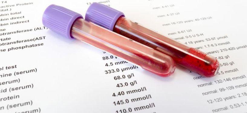 Γενική εξέταση αίματος: Πόσο σημαντική είναι και η ερμηνεία των επιμέρους εξετάσεων